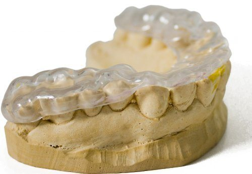Dentist Mouth Guard Vs Store Bought Which Should I Get