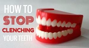 stop clenching teeth