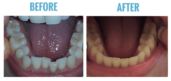 smile care club before after