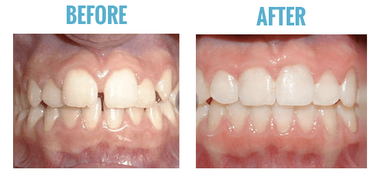 smile direct club before after